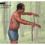 medical illustration of 3rd degree burn victim